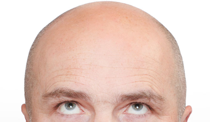 Eigenblut-Behandlung gegen Haarausfall