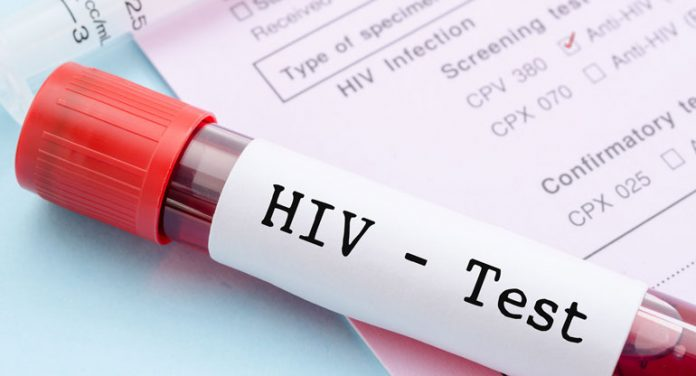 HIV-Selbsttest
