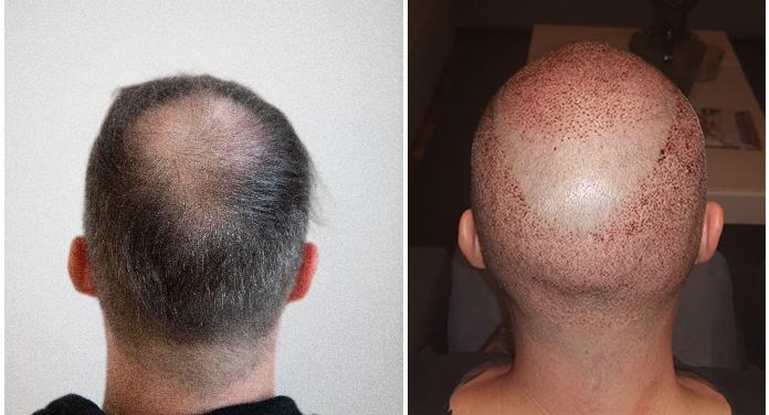 Haartransplantation erfahrungen Haartransplantation Patienten