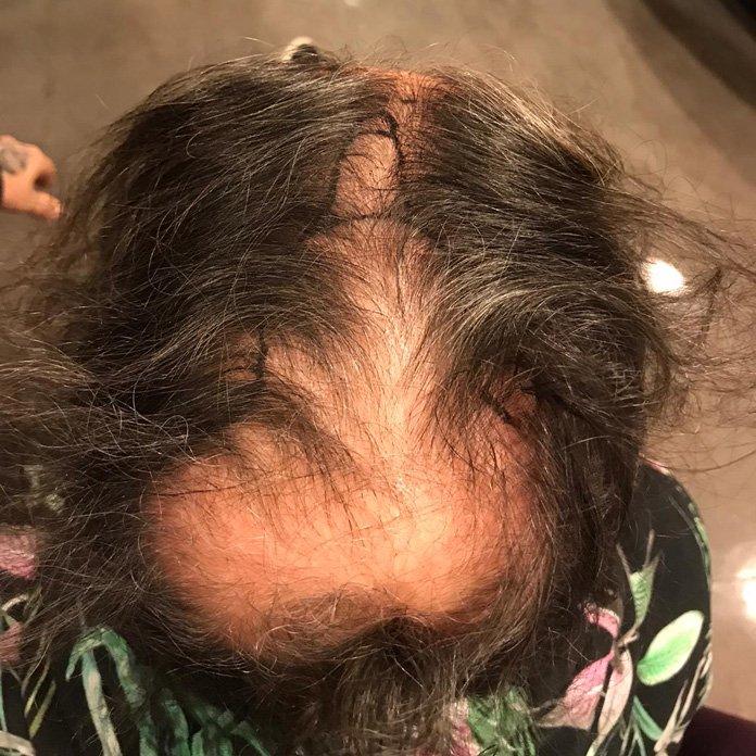 Haartransplantation Türkei vorher