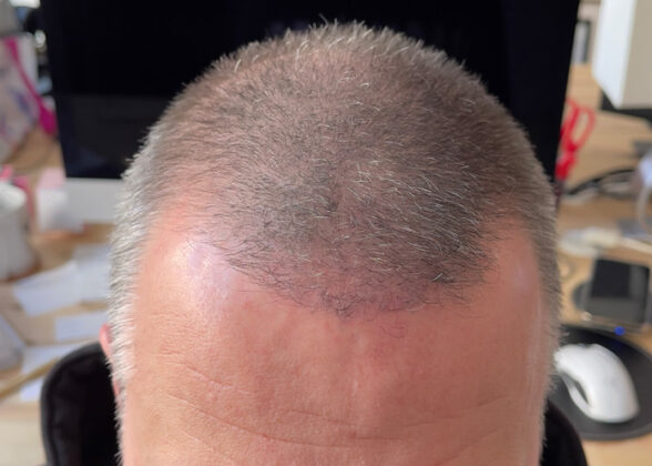 Haaransatz nachher