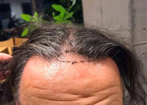 Haaransatz vorher