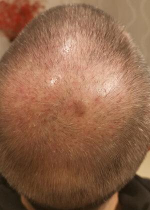 Haartransplantation Fortschritt Wachstum